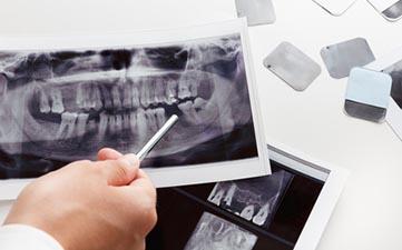 rentgen dijagnostika zubi