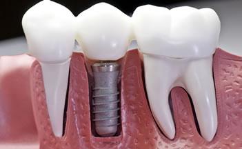 ugradnja-implantanata
